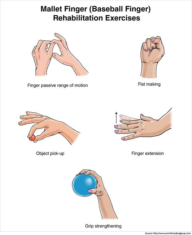 mallet-finger-exercises
