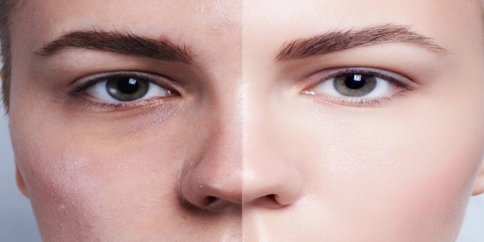 5-things-to-cosmetic-surgery