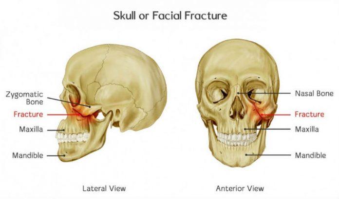 facial-fracture-surgery
