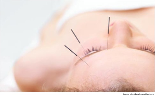 acupuncture-for-migraines-and-headache